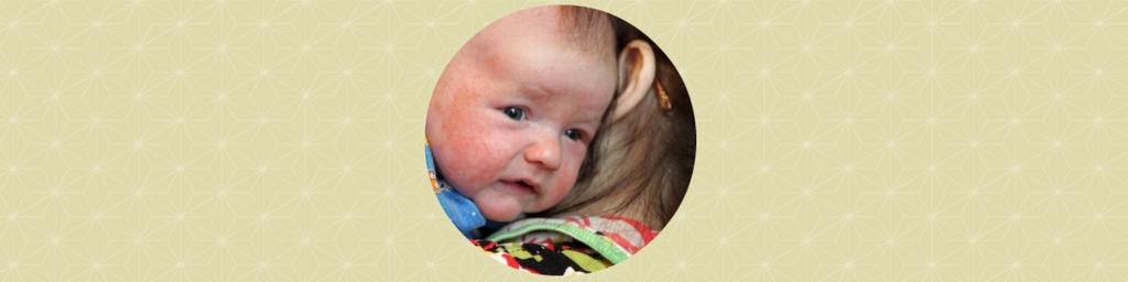 Darmtherapie voor baby per skype-consult